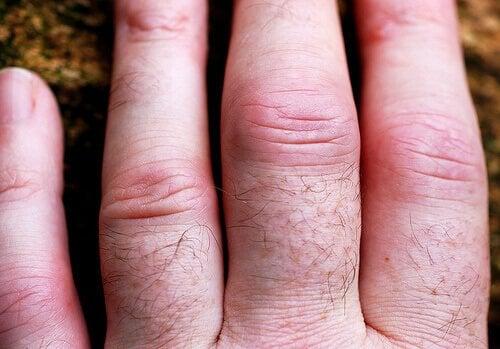 artrit-3