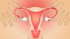 Endometriyozunuz Varsa, Hayatınızı İyileştirmenin 5 Doğal Yolu