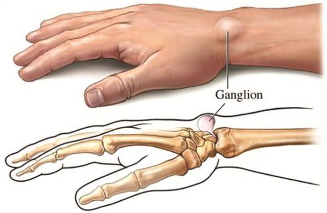 ganglionkisti