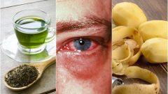 Pembe Göz Hastalığı İçin Evde Uygulayabileceğiniz 8 Tedavi
