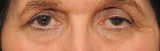 Göz kapağı düşüklüğü nedir ile Etiketlenen Konular 48