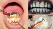 Diş Taşlarını Ortadan Kaldırmak İçin 3 Etkili Tedavi Yöntemi