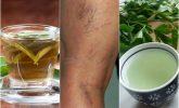 Varisli Damarlar İçin 5 Diüretik Çay