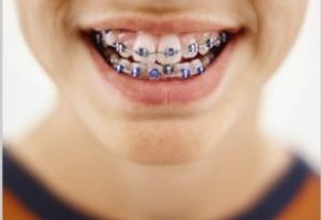 Diş Anomalileri