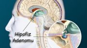 Hipofiz Adenomu