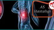 AS Hastalığı Nedir? Neden Olur Ve Nasıl Tedavi Edilir?
