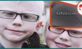 Albinizm Nedir Tedavi Yöntemleri Nelerdir?