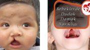 Bebeklerde Dudak Damak Yarıklığı Nedir
