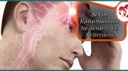 Beyin Kanaması Rahatsızlığının Nedenleri Ve Belirtileri Nelerdir?