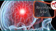 Beyinde leke neden olur tedavisi nasıl yapılır?