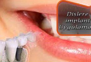Dişlere İmplant Uygulaması