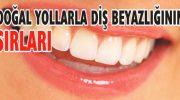 Dişleriniz Böyle Beyazlasın