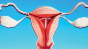 Doğum Kontrol İçin Dölyatağı Aleti (IUD) Ve Etkileri