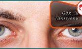 Göz Tansiyonu Nedir Belirtileri Nelerdir?