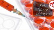 Kök Hücre Tedavisi Sonrası Neler Yapılmalıdır
