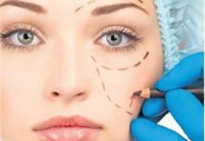 Plastik Cerrahi (Ameliyat) Göz Estetiği