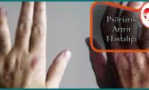 Psöriatik Artrit Hastalığı Nedir?