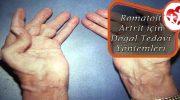 Romatoit Artrit İçin Doğal Tedavi Yöntemleri
