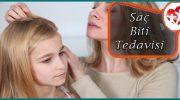 Saç Biti Tedavisi İçin Doğal Yöntemler