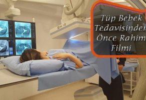 Tüp Bebek Tedavisinden Önce Rahim Filmi