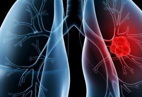 Akciğer Kanseri Belirtileri, Evreleri, Yaşam Süresi ve Tedavisi
