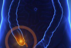 Akut Apandisit Nedir, Belirtileri, Ameliyatı ve Tedavisi