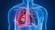 Alerjik Bronşit Belirtileri ve Tedavisi