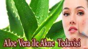 Aloe Vera ile Akne Tedavisi