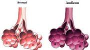 Amfizem Hastalığı Nedir ?