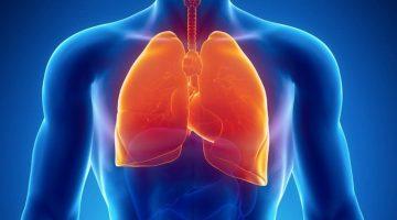 ARDS (Akut Respiratuar Distres Sendromu) Nedir ?