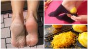 Ayaklarınızı İyileştirmek İçin Limon Kabuğu Kullanın