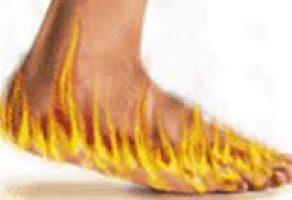 Ayak Yanması Neden Olur Nasıl Geçer Tedavisi