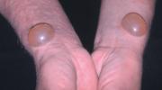 Büllü Hastalıkları Ve Tedavi Süreci