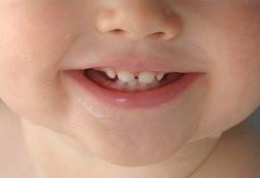 Bebeklerde Diş Çıkartma Belirtileri Nelerdir?