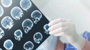 Beyin Anevrizması Nedenleri, Belirtileri, Teşhisi Ve Tedavisi