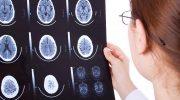 Beyinde Kist Belirtileri ve Tedavisi
