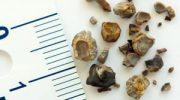 Böbrek ve Üreter Taşları