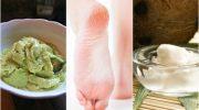 Çatlamış Topuklarınız Mı Var? Bu 5 Ev Tedavisini Deneyin!