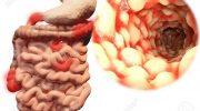 Crohn Hastalığı Nedir ? & Crohn Hastalığı Beslenme ve Tedavi
