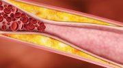 Damarlarda biriken kolesterolü böyle temizleyin