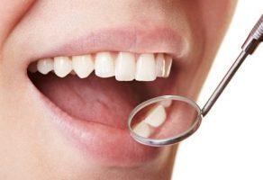 Evde Diş Plağından Kolayca Kurtulma Yöntemleri