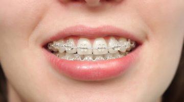 Diş Teli Temizliği Nasıl Yapılmalıdır ?