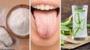 Bu 8 Doğal Çare ile Beyaz Dil Sorununa Son Verin