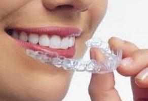 Diş Çarpıklığı Nedenleri ve Tedavisi