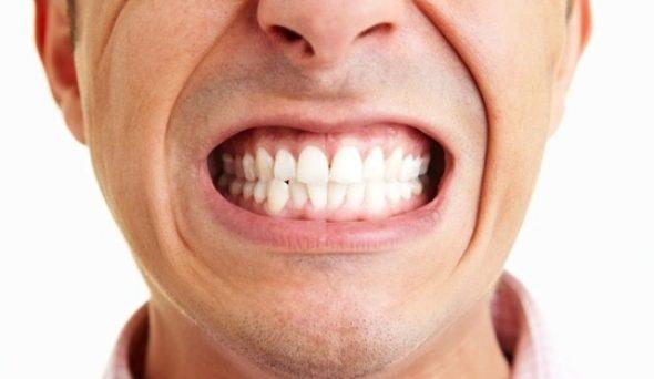 Diş Sıkma Nedenleri ve Tedavisi
