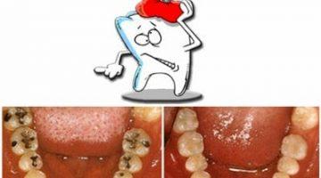 Diş Çürümesi Nedir-Diş Çürüğü Nasıl Meydana Gelir?