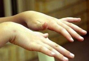 El titremesi neden olur ve nasıl tedavi edilir?