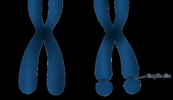 Frajil X Sendromu Nedir ? & Frajil (Kırılgan) X Sendromu Neden Olur ?