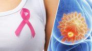 Meme Kanseri ve 10 Uyarıcı İşareti
