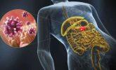 Gastroenterit Nedir ? & Gastroenterit Nasıl Geçer ? & Gastroenterit Tedavisi